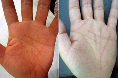 Si se intenta crear una línea en la palma de la mano con un láser, va a curarse, y no va a dejar una marca clara..