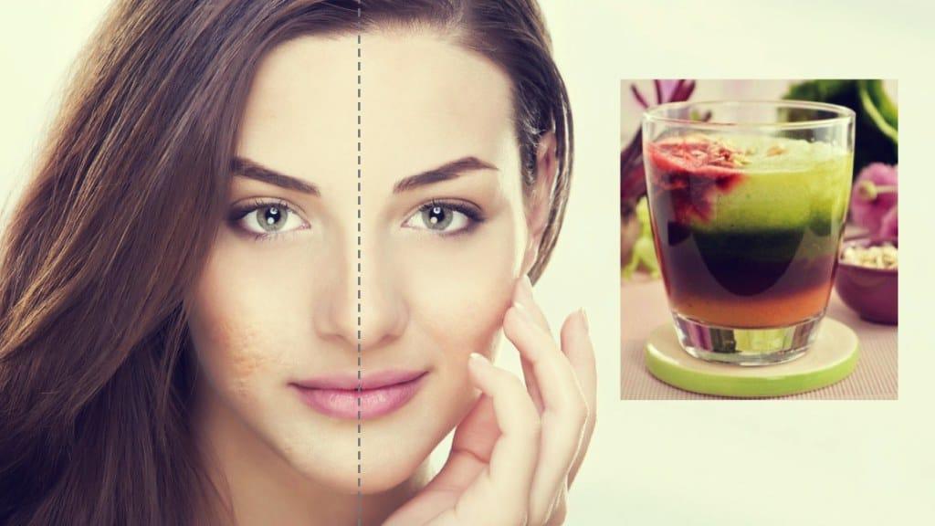 ¡Remedios naturales e infalibles contra el acné!