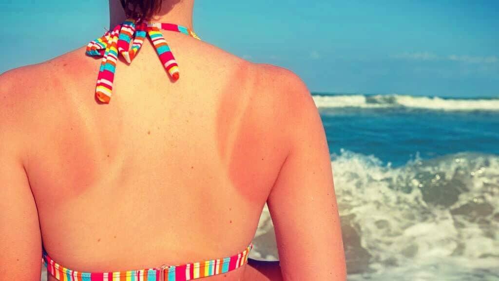 quemaduras de sol