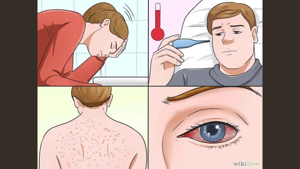 reconocer virus del zika
