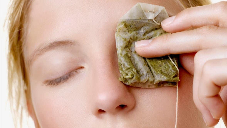 Remedios caseros para el tratamientos de orzuelos